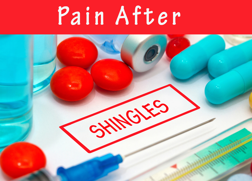 Pain after shingles